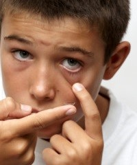 Kids Contact Lenses